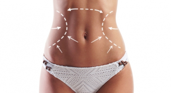 Abdominoplasty Plastic Surgery - A Summary