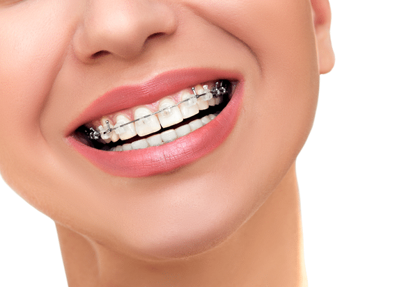 The Truth about Orthodontics for Kids